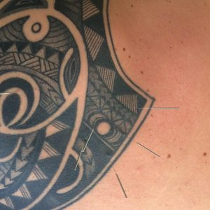 Pain management Steve Coster Acupuncture