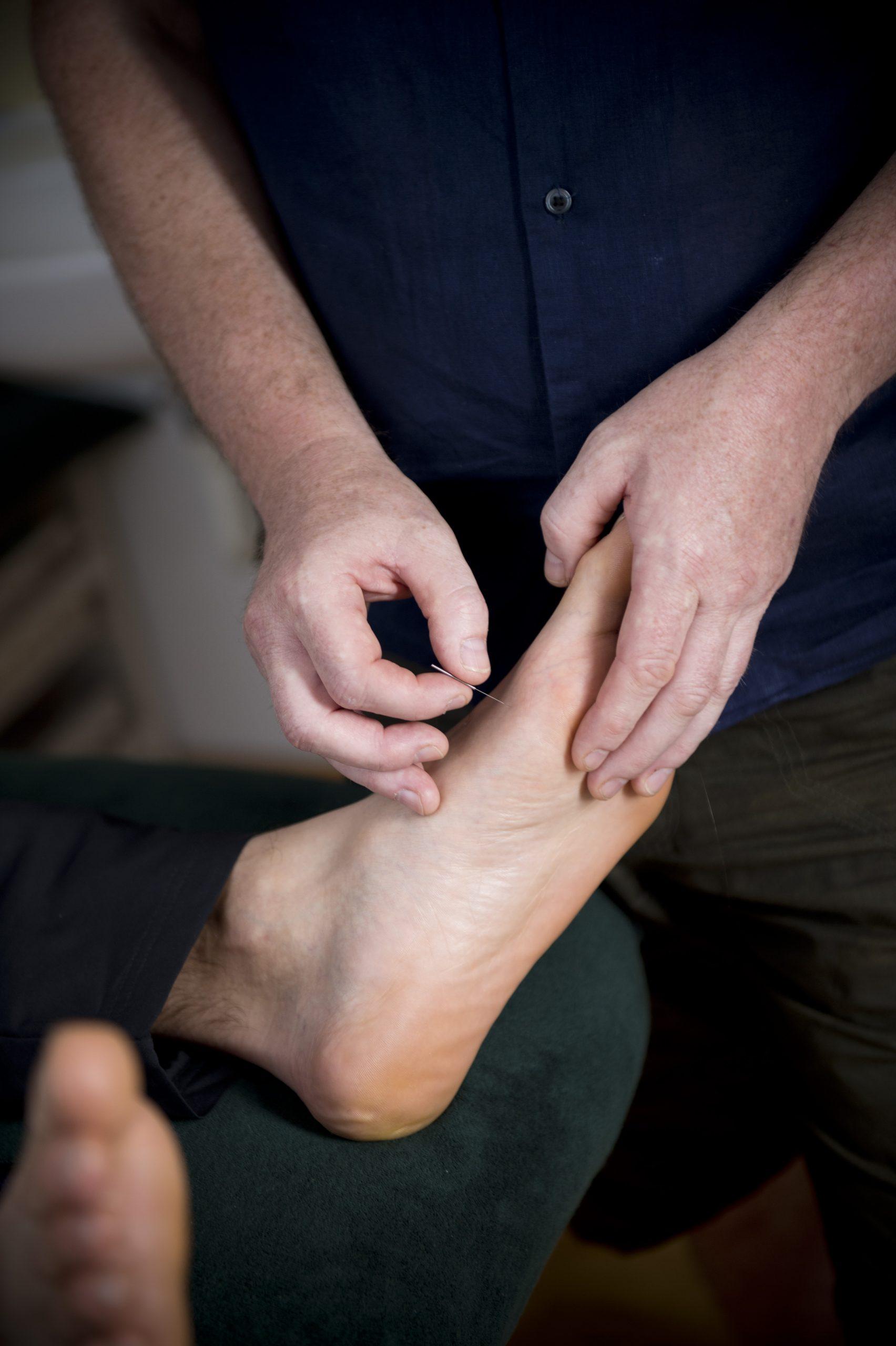 Plantar fasciitis Southend Acupuncture Heel Pain