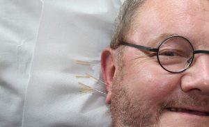 Acupuncture Southend Pain